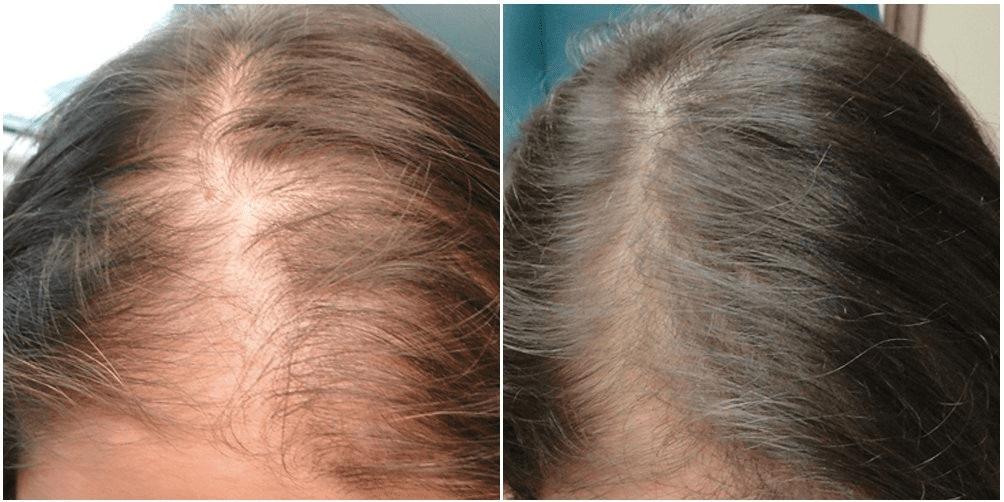 PRP SKIN AND HAIR REJUVENATION